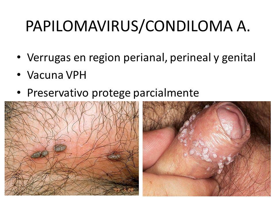 PAPILOMAVIRUS/CONDILOMA A. Verrugas en region perianal, perineal y genital Vacuna VPH Preservativo protege parcialmente