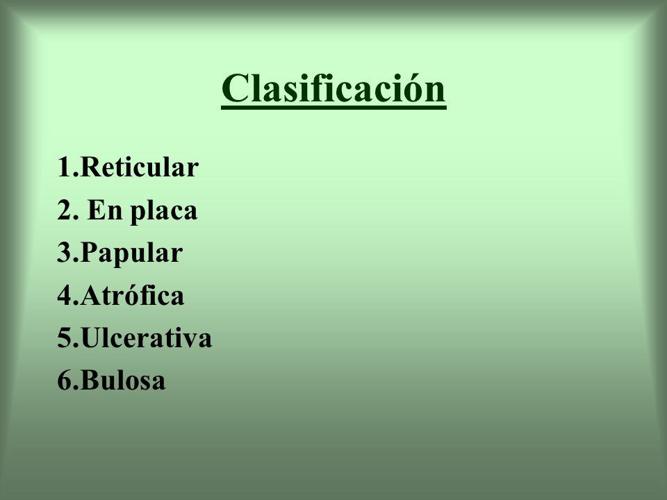 1.Reticular Es la más común Presencia de líneas queratósicas blancas entrelazadas o estrías ( Estriado de Wickham) de 1 o 2 mm.