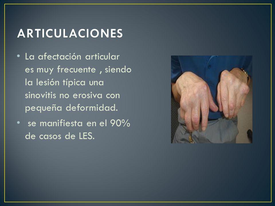 La afectación articular es muy frecuente, siendo la lesión típica una sinovitis no erosiva con pequeña deformidad.