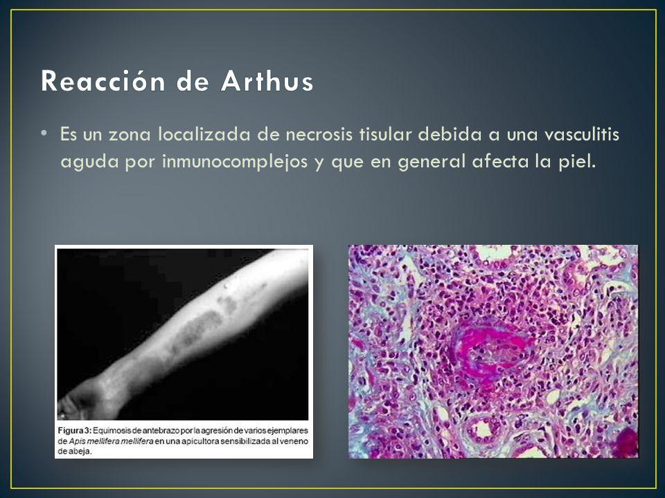 Es un zona localizada de necrosis tisular debida a una vasculitis aguda por inmunocomplejos y que en general afecta la piel.