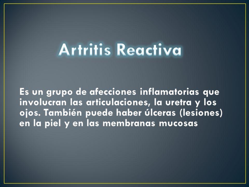 La causa exacta de la artritis reactiva no se conoce Este síndrome se presenta en los hombres antes de los 40 años de edad infección por Clamidia, Campylobacter, Salmonella o Yersinia ciertos genes pueden hacer que uno sea más propenso al síndrome.