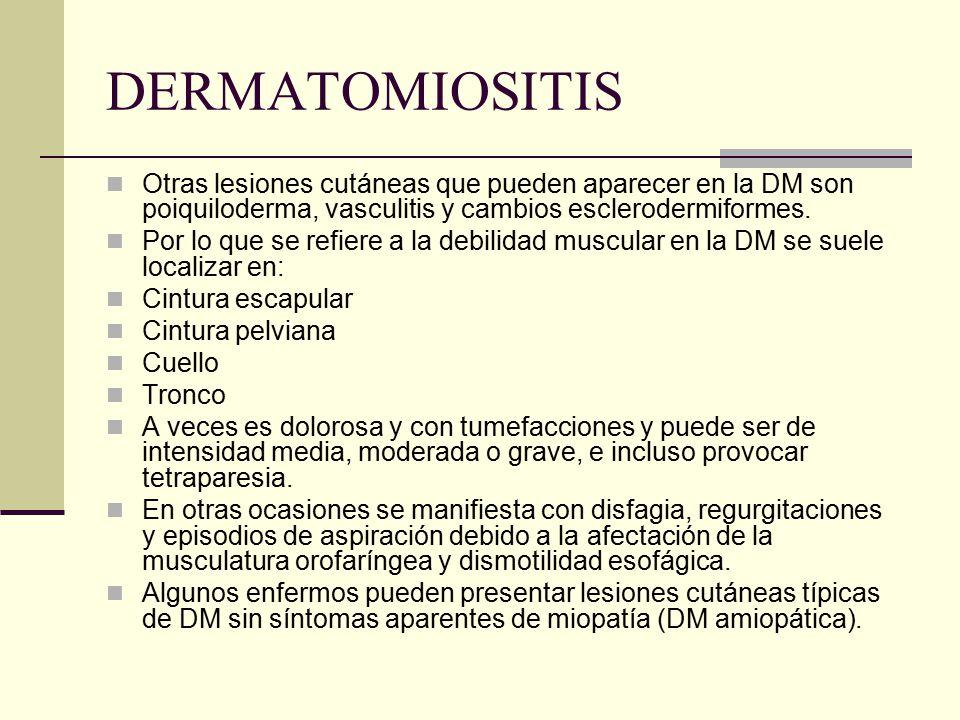 DERMATOMIOSITIS Otras lesiones cutáneas que pueden aparecer en la DM son poiquiloderma, vasculitis y cambios esclerodermiformes. Por lo que se refiere