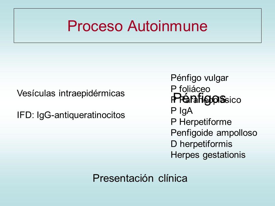 Proceso Autoinmune Vesículas intraepidérmicas IFD: IgG-antiqueratinocitos Pénfigo vulgar P foliáceo P Paraneoplásico P IgA P Herpetiforme Penfigoide a