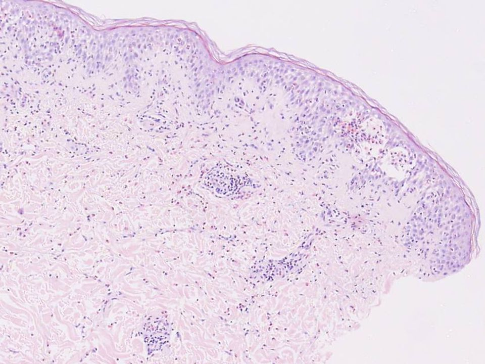 Mecanismo inmunopatogénico Producción de autoanticuerpos IgG (IgG4) Unión a desmogleínas (1 ó 3) Alteraciones histológicas Manifestaciones clínicas