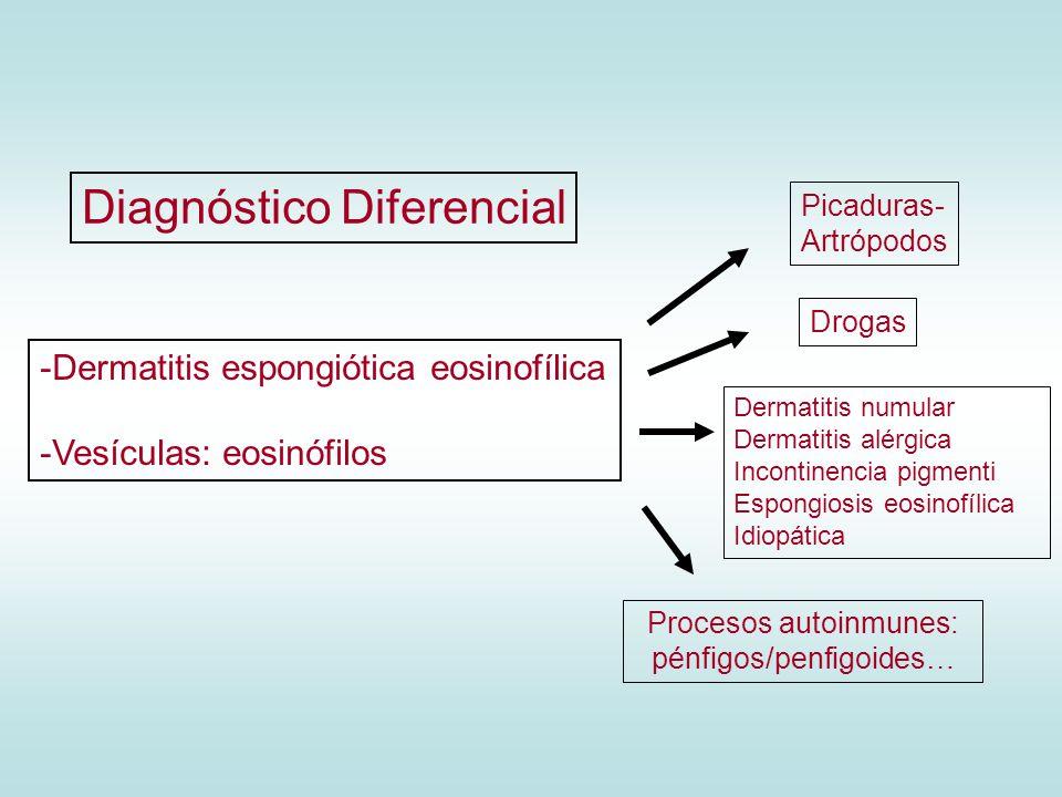 -Dermatitis espongiótica eosinofílica -Vesículas: eosinófilos Picaduras- Artrópodos Drogas Dermatitis numular Dermatitis alérgica Incontinencia pigmen