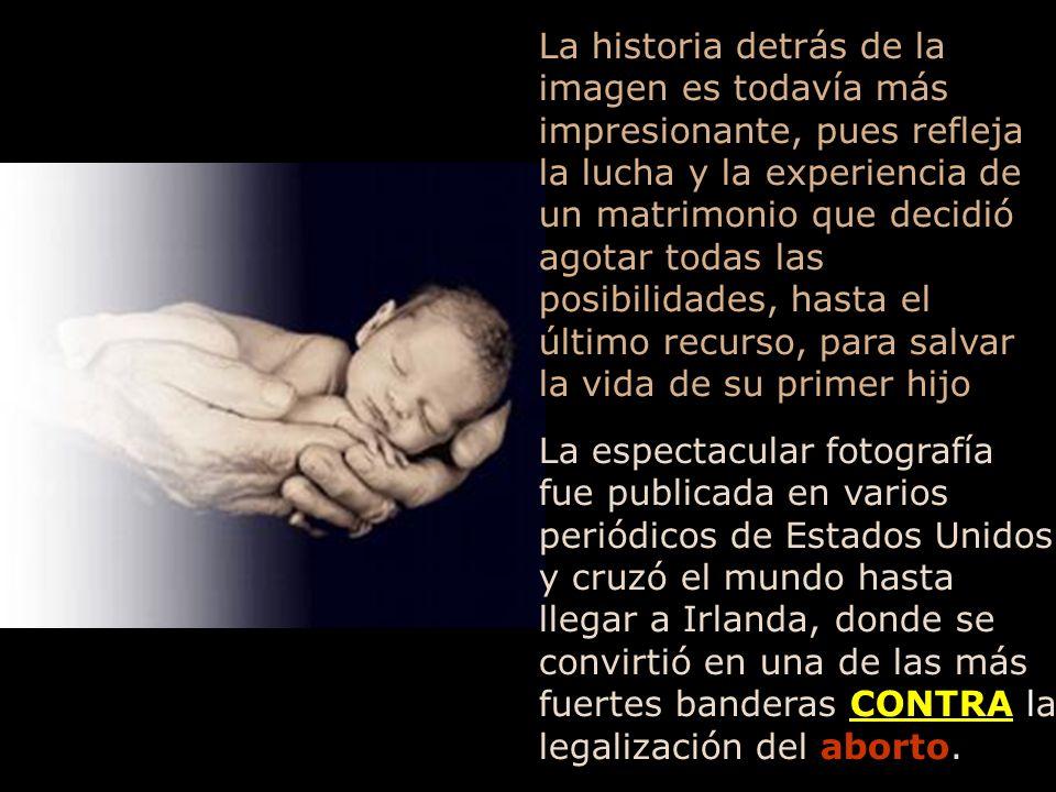 Un fotógrafo que hizo unas fotografías en una intervención quirúrgica de espina bífida, realizada dentro del útero materno, de un feto de apenas 21 semanas de gestación, en una auténtica proeza médica, nunca imaginó que su máquina fotográfica iría a registrar, tal vez, el grito más elocuente a favor de la vida, conocido hasta hoy Paul Harris captó el momento en que el bebé sacó su pequeña mano del interior del útero de su madre, agarrando uno de los dedos del doctor que le estaba operando