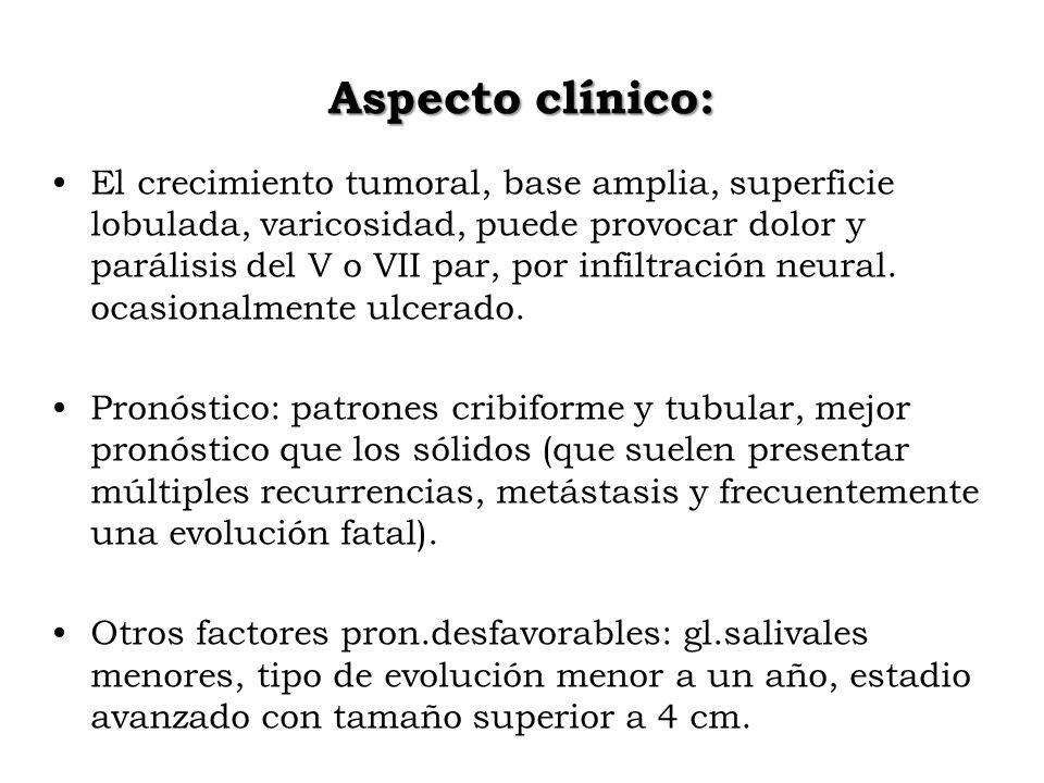 Aspecto clínico: El crecimiento tumoral, base amplia, superficie lobulada, varicosidad, puede provocar dolor y parálisis del V o VII par, por infiltra