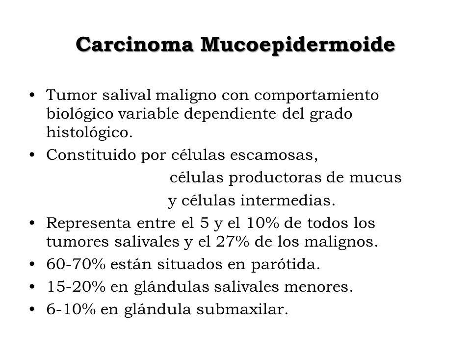 Carcinoma Mucoepidermoide Tumor salival maligno con comportamiento biológico variable dependiente del grado histológico. Constituido por células escam