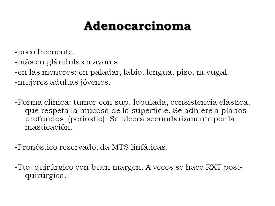 Adenocarcinoma -poco frecuente. -más en glándulas mayores. -en las menores: en paladar, labio, lengua, piso, m.yugal. -mujeres adultas jóvenes. -Forma