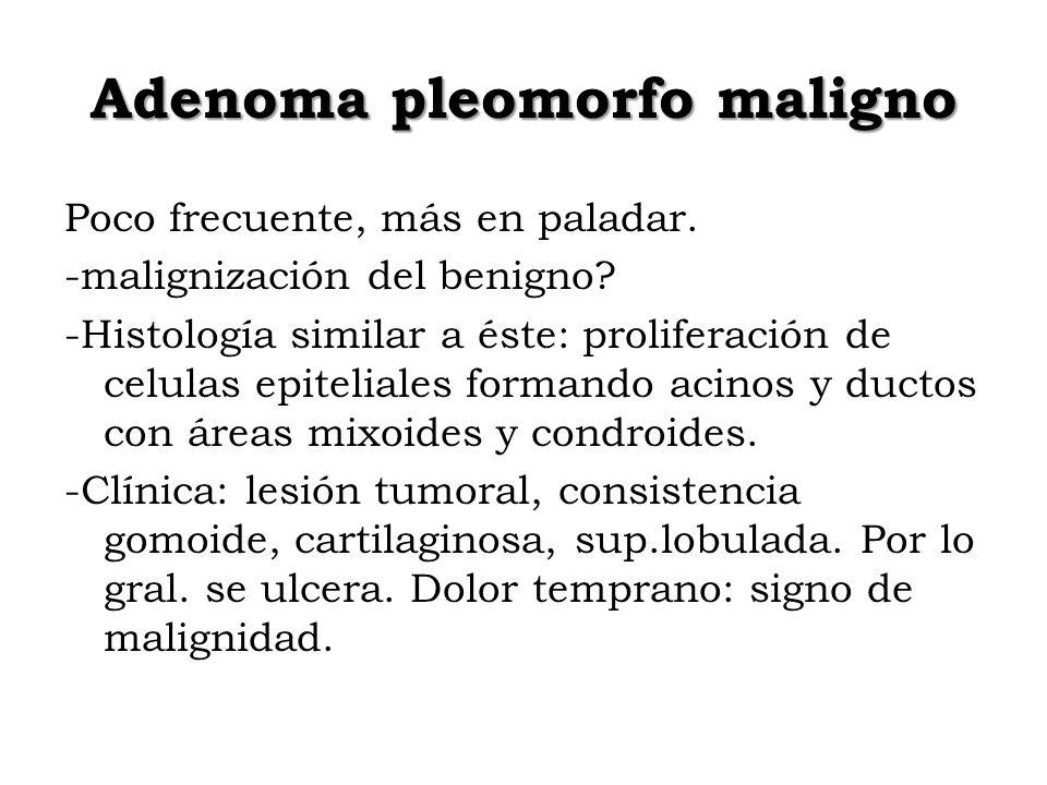 Adenoma pleomorfo maligno Poco frecuente, más en paladar. -malignización del benigno? -Histología similar a éste: proliferación de celulas epiteliales