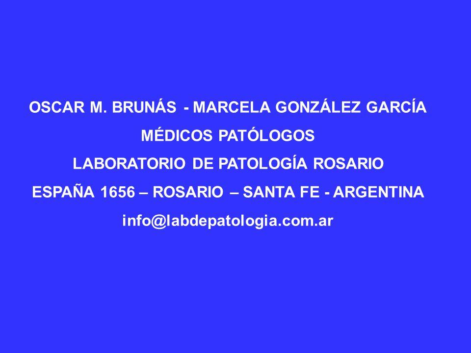 FORMAS ESPECIALES DE CARCINOMA PAVIMENTOSO Carcinoma verrucoso (control de la enfermedad en un 82 a 95% de los casos).