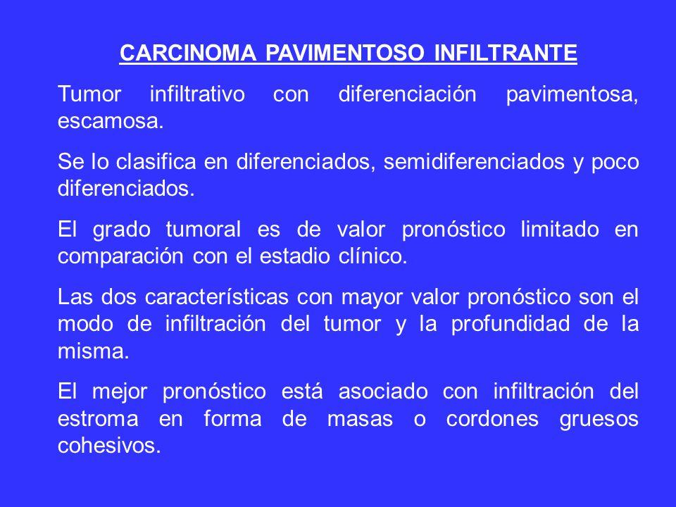 CARCINOMA PAVIMENTOSO INFILTRANTE Tumor infiltrativo con diferenciación pavimentosa, escamosa.