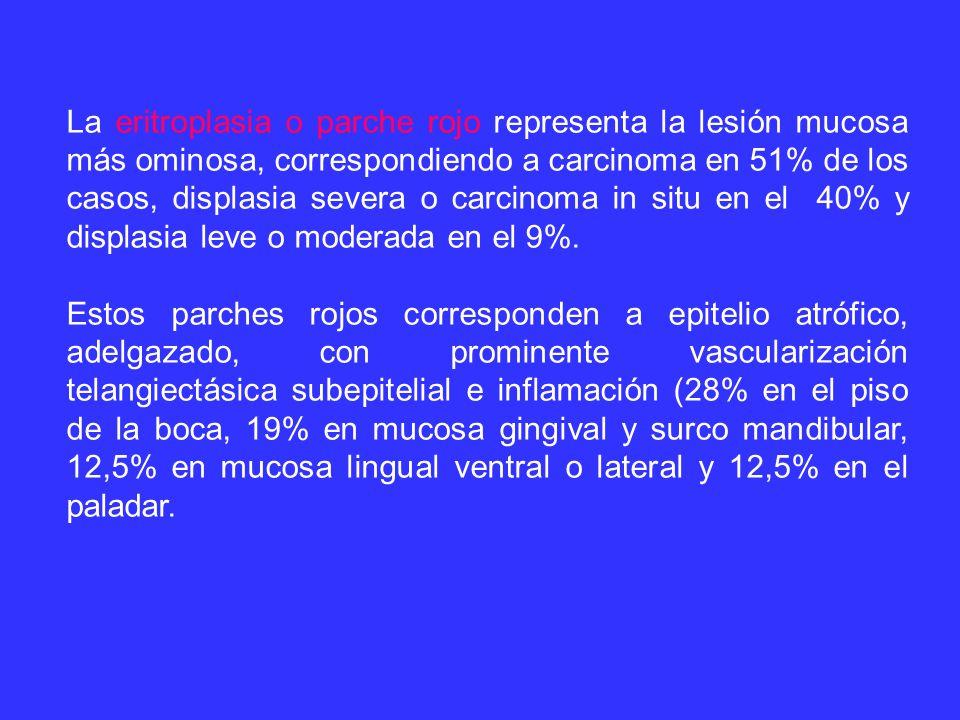 La eritroplasia o parche rojo representa la lesión mucosa más ominosa, correspondiendo a carcinoma en 51% de los casos, displasia severa o carcinoma in situ en el 40% y displasia leve o moderada en el 9%.