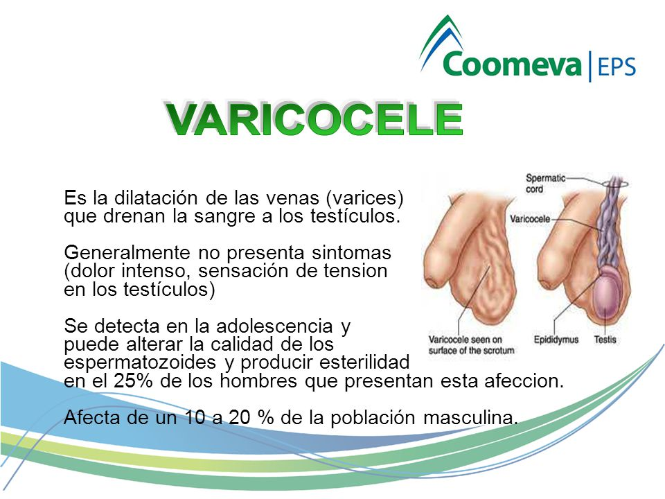 Es la dilatación de las venas (varices) que drenan la sangre a los testículos.