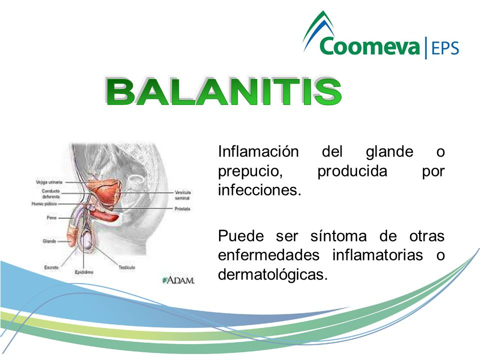 Inflamación del glande o prepucio, producida por infecciones.