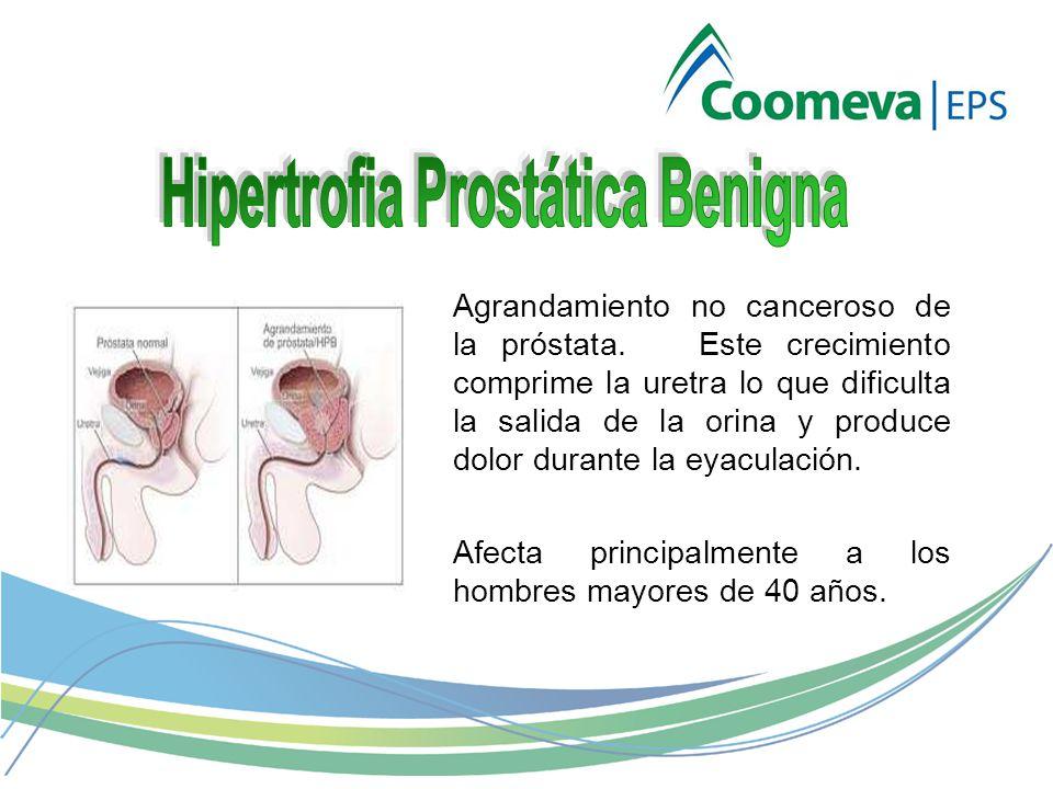 Agrandamiento no canceroso de la próstata.