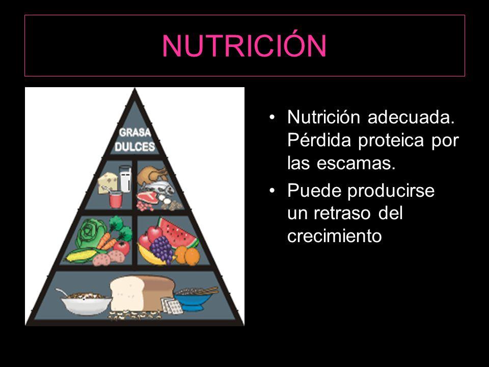 NUTRICIÓN Nutrición adecuada.Pérdida proteica por las escamas.