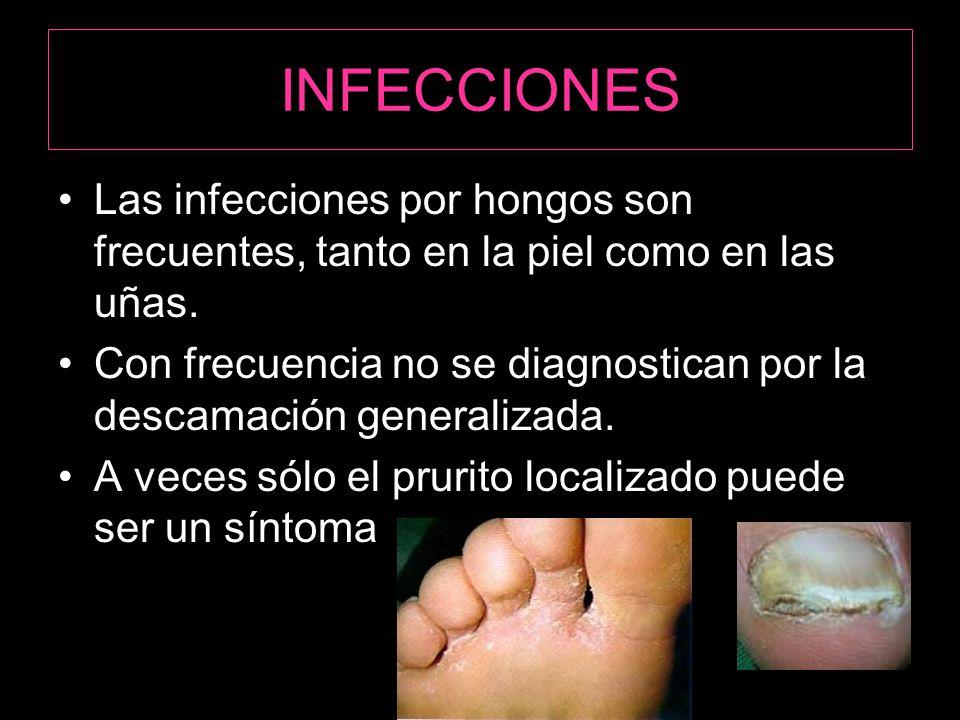 INFECCIONES Las infecciones por hongos son frecuentes, tanto en la piel como en las uñas.