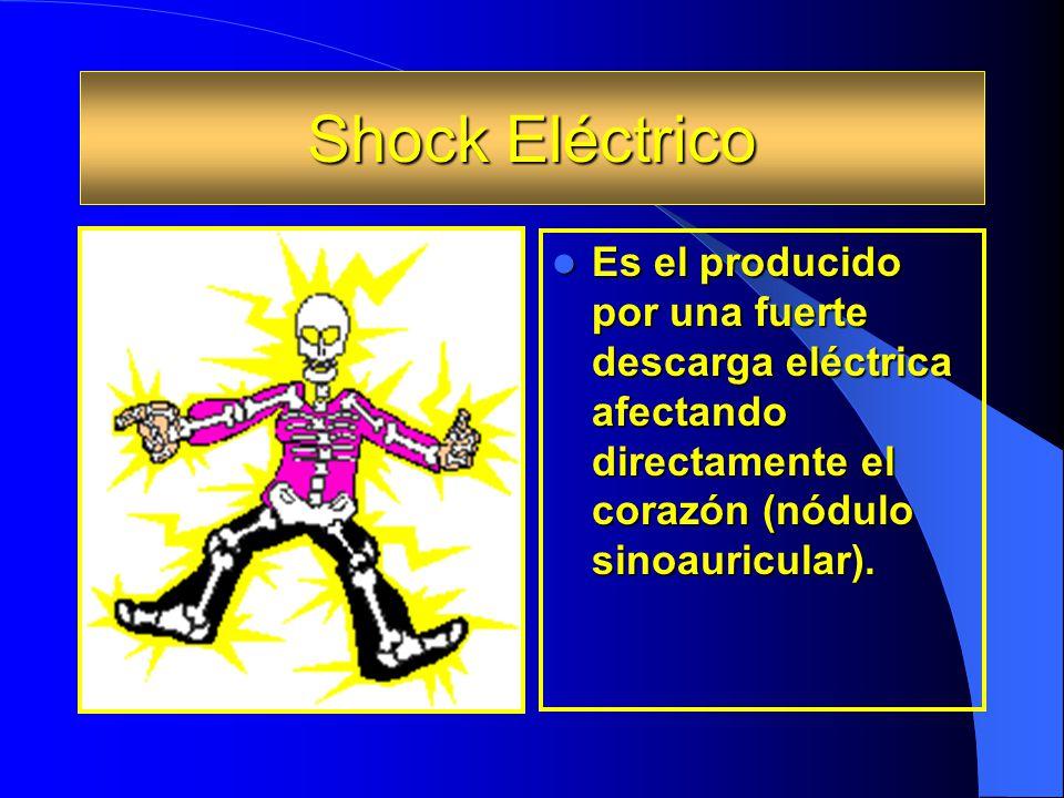 Shock Eléctrico Es el producido por una fuerte descarga eléctrica afectando directamente el corazón (nódulo sinoauricular). Es el producido por una fu