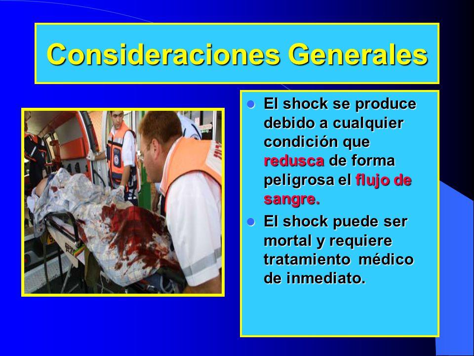 Consideraciones Generales El shock se produce debido a cualquier condición que redusca de forma peligrosa el flujo de sangre. El shock se produce debi