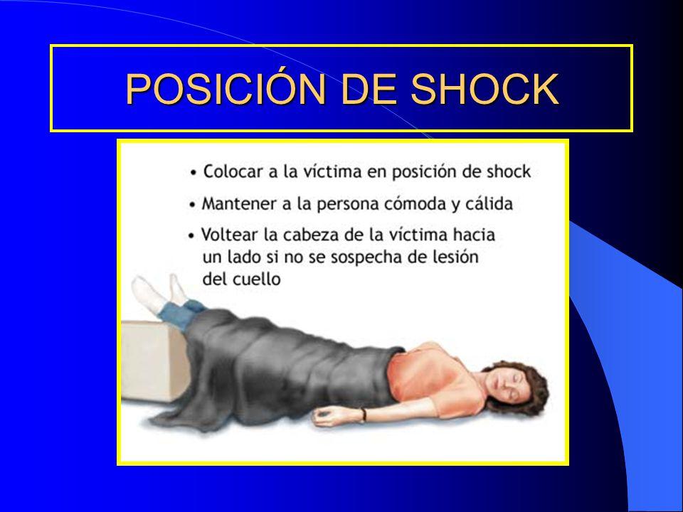 POSICIÓN DE SHOCK