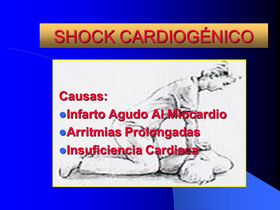 SHOCK CARDIOGÉNICO Causas: Infarto Agudo Al Miocardio Infarto Agudo Al Miocardio Arritmias Prolongadas Arritmias Prolongadas Insuficiencia Cardiaca In