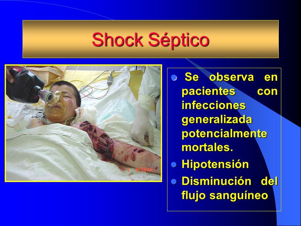 Shock Séptico Se observa en pacientes con infecciones generalizada potencialmente mortales. Se observa en pacientes con infecciones generalizada poten