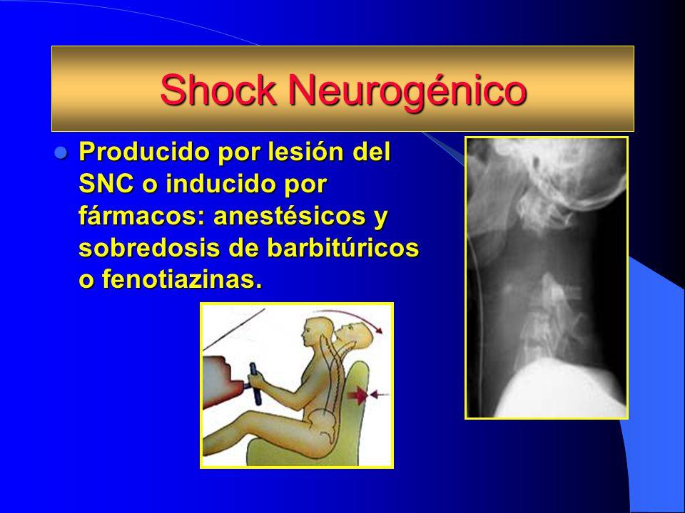 Shock Neurogénico Producido por lesión del SNC o inducido por fármacos: anestésicos y sobredosis de barbitúricos o fenotiazinas. Producido por lesión