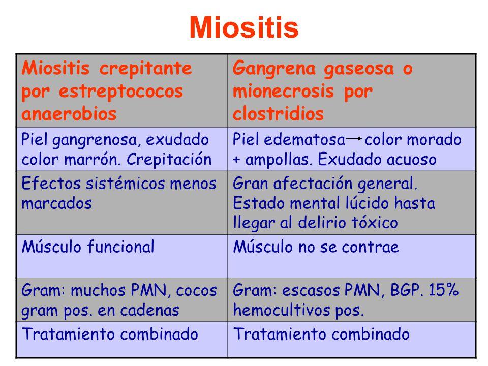 Miositis crepitante por estreptococos anaerobios Gangrena gaseosa o mionecrosis por clostridios Piel gangrenosa, exudado color marrón.