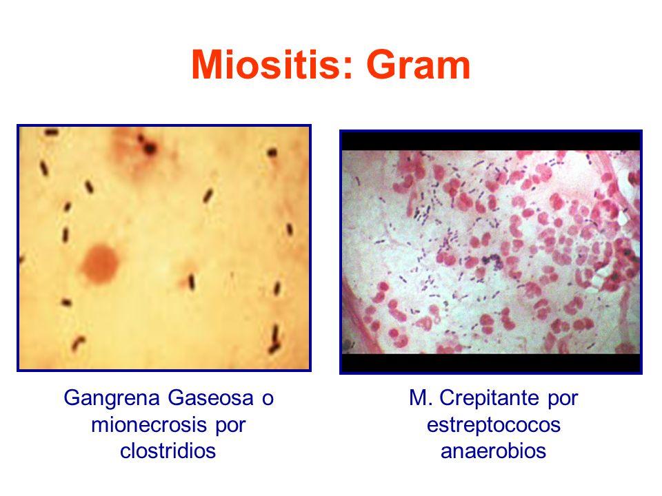 Miositis: Gram Gangrena Gaseosa o mionecrosis por clostridios M.