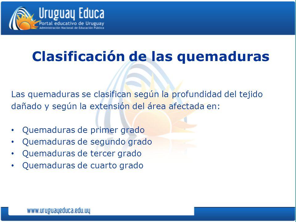 Clasificación de las quemaduras Las quemaduras se clasifican según la profundidad del tejido dañado y según la extensión del área afectada en: Quemadu