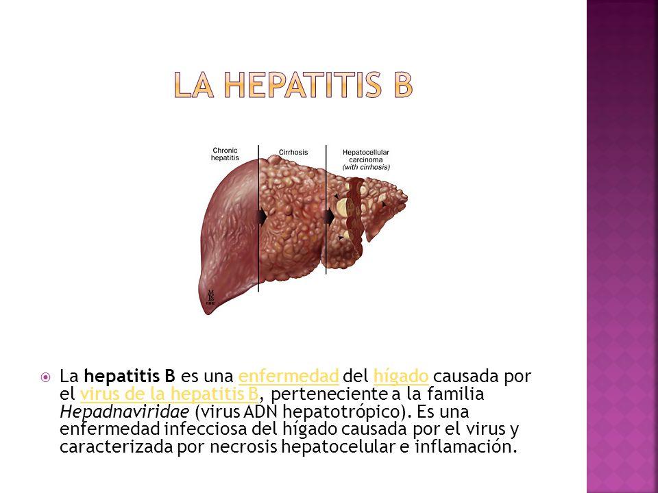  La hepatitis B es una enfermedad del hígado causada por el virus de la hepatitis B, perteneciente a la familia Hepadnaviridae (virus ADN hepatotrópico).