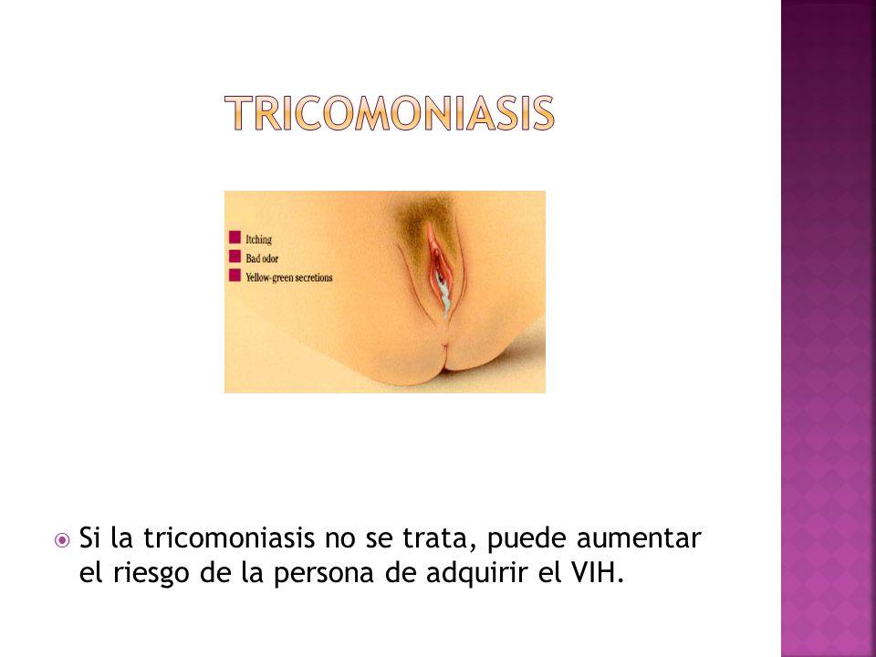  Si la tricomoniasis no se trata, puede aumentar el riesgo de la persona de adquirir el VIH.