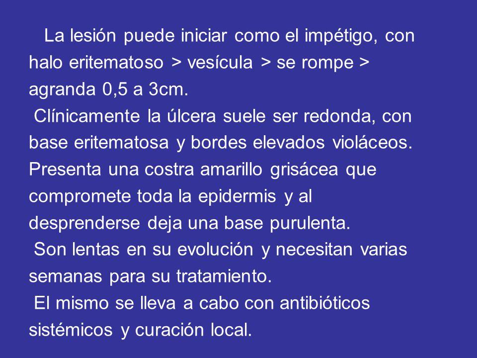 La lesión puede iniciar como el impétigo, con halo eritematoso > vesícula > se rompe > agranda 0,5 a 3cm. Clínicamente la úlcera suele ser redonda, co