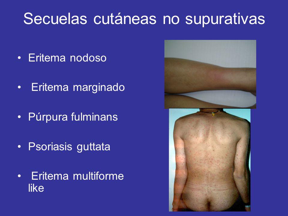 Secuelas cutáneas no supurativas Eritema nodoso Eritema marginado Púrpura fulminans Psoriasis guttata Eritema multiforme like