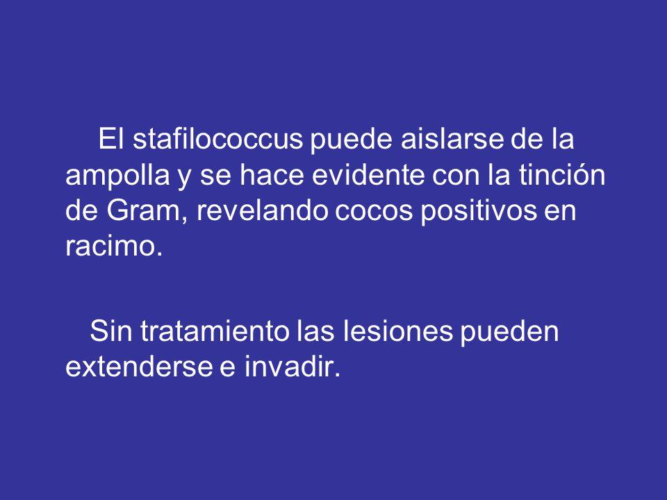 El stafilococcus puede aislarse de la ampolla y se hace evidente con la tinción de Gram, revelando cocos positivos en racimo. Sin tratamiento las lesi