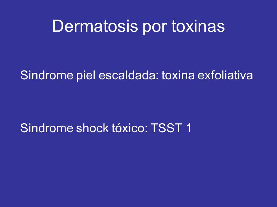 Dermatosis por toxinas Sindrome piel escaldada: toxina exfoliativa Sindrome shock tóxico: TSST 1