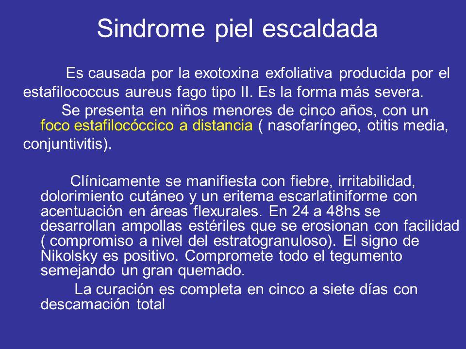 Sindrome piel escaldada Es causada por la exotoxina exfoliativa producida por el estafilococcus aureus fago tipo II. Es la forma más severa. Se presen