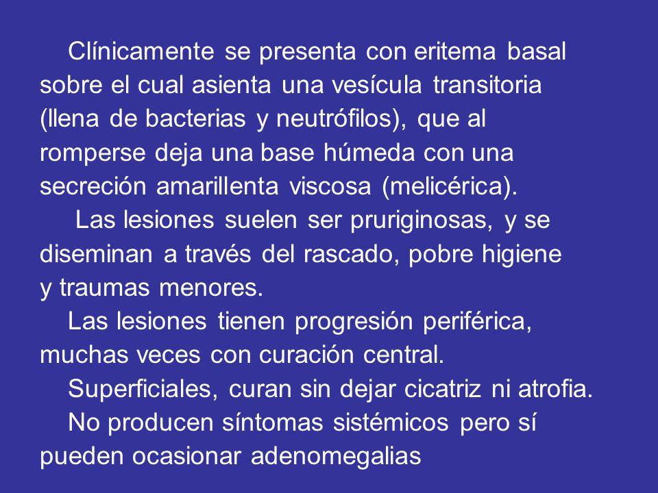 Clínicamente se presenta con eritema basal sobre el cual asienta una vesícula transitoria (llena de bacterias y neutrófilos), que al romperse deja una base húmeda con una secreción amarillenta viscosa (melicérica).