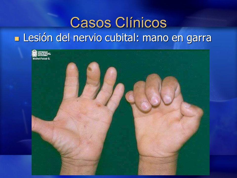 lesion nervio cubital: