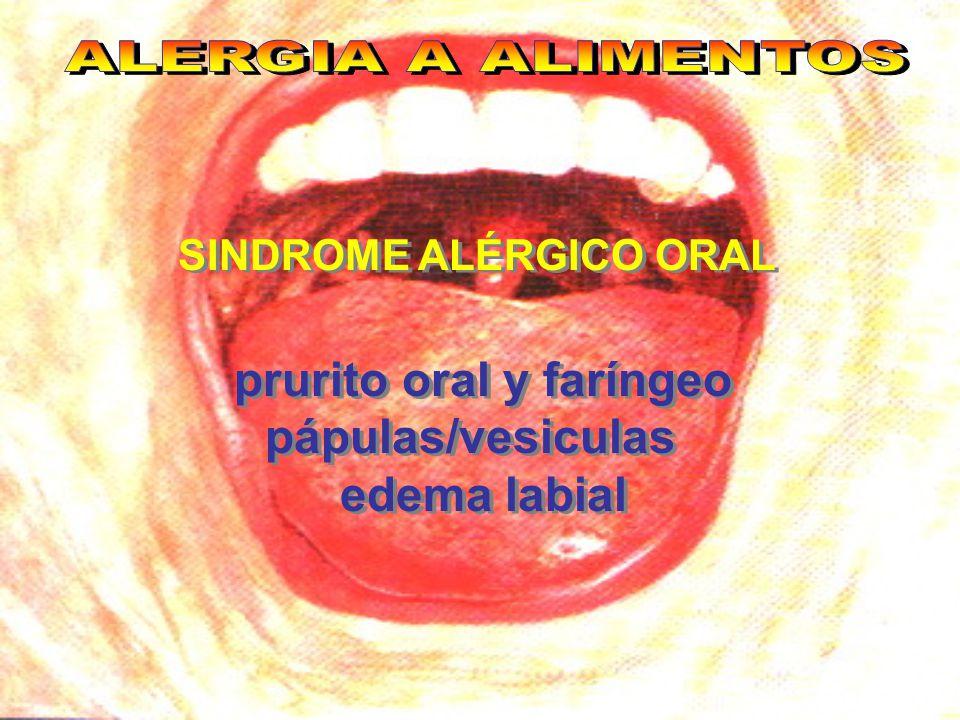 SINDROME ALÉRGICO ORAL prurito oral y faríngeo pápulas/vesiculas edema labial prurito oral y faríngeo pápulas/vesiculas edema labial