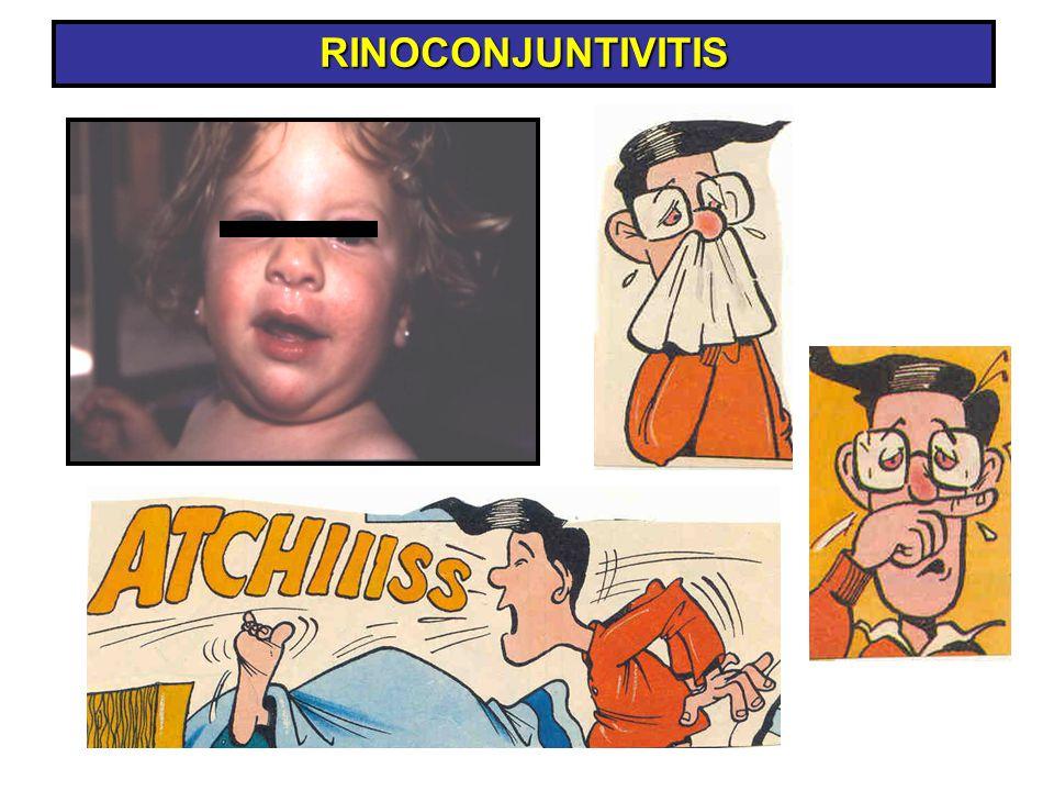 RINOCONJUNTIVITIS