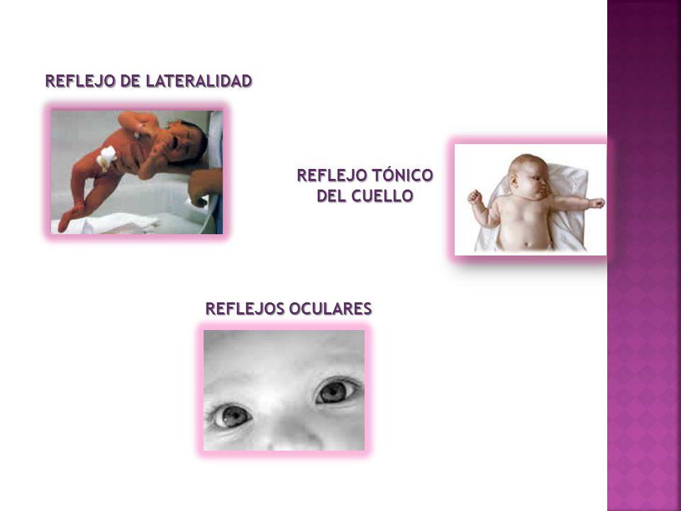 REFLEJO DE LATERALIDAD REFLEJO TÓNICO DEL CUELLO REFLEJOS OCULARES