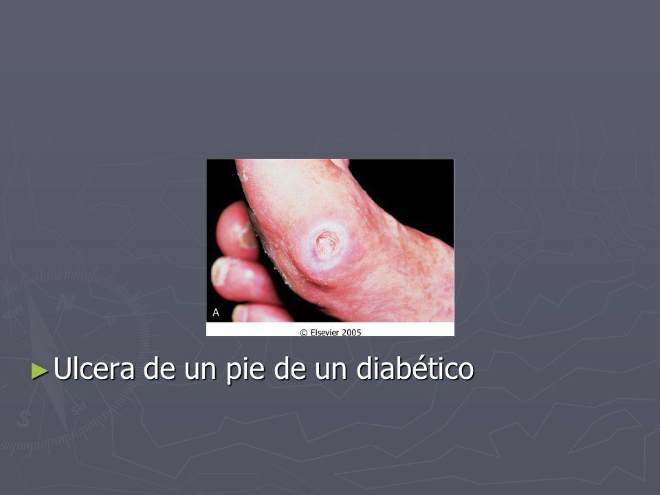 ► Ulcera de un pie de un diabético