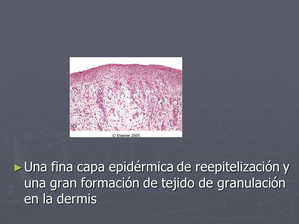 ► Una fina capa epidérmica de reepitelización y una gran formación de tejido de granulación en la dermis