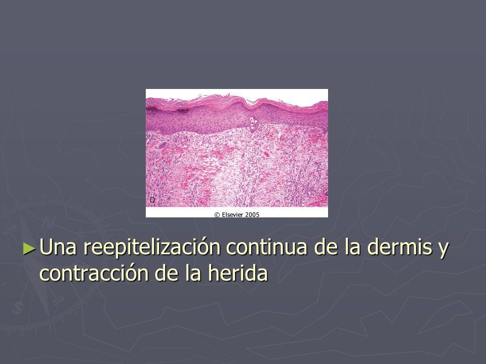 ► Una reepitelización continua de la dermis y contracción de la herida