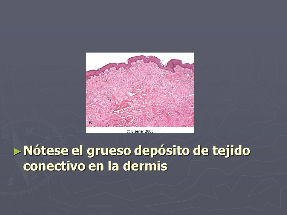 ► Nótese el grueso depósito de tejido conectivo en la dermis