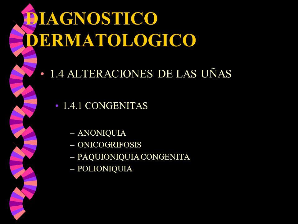 DIAGNOSTICO DERMATOLOGICO 1.4 ALTERACIONES DE LAS UÑAS 1.4.1 CONGENITAS –ANONIQUIA –ONICOGRIFOSIS –PAQUIONIQUIA CONGENITA –POLIONIQUIA