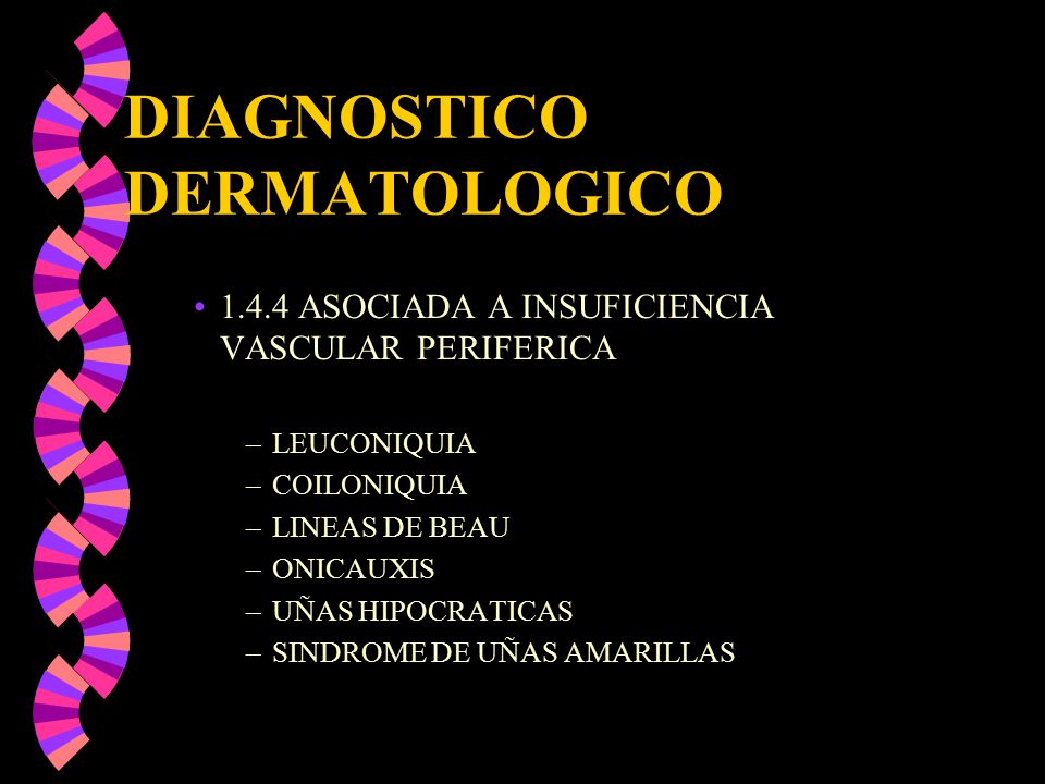 DIAGNOSTICO DERMATOLOGICO 1.4.4 ASOCIADA A INSUFICIENCIA VASCULAR PERIFERICA –LEUCONIQUIA –COILONIQUIA –LINEAS DE BEAU –ONICAUXIS –UÑAS HIPOCRATICAS –