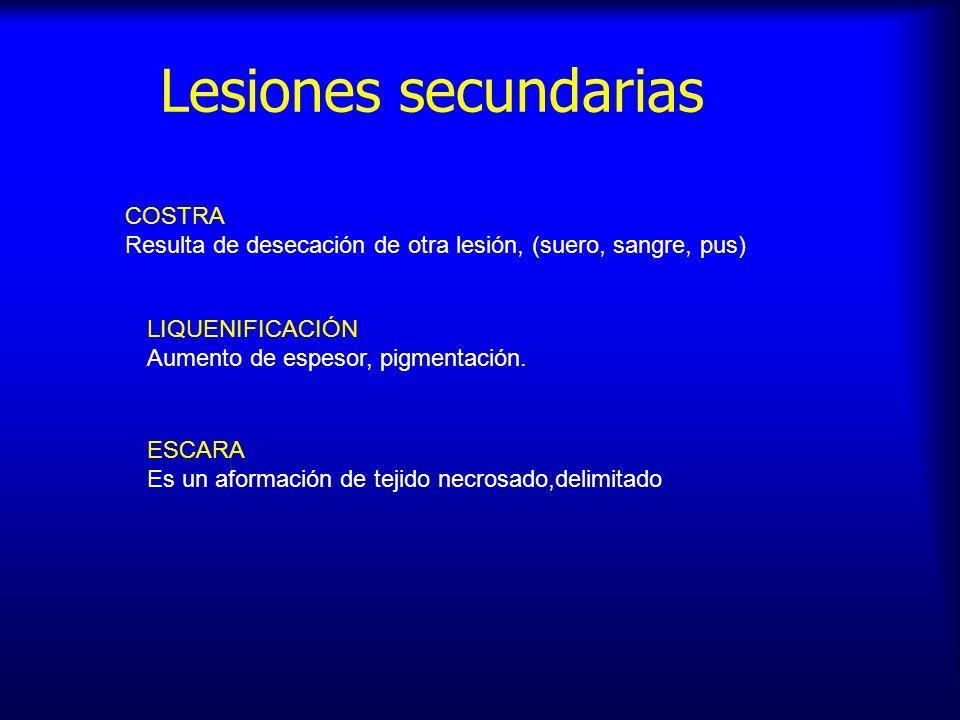 Lesiones secundarias COSTRA Resulta de desecación de otra lesión, (suero, sangre, pus) LIQUENIFICACIÓN Aumento de espesor, pigmentación. ESCARA Es un